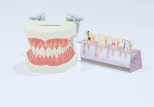 2 16 500x347 奥歯にインプラントを入れた時の費用相場|保険適用は?メリットとデメリットを解説